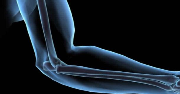 Symptoms And Treatment Of Bone Tb