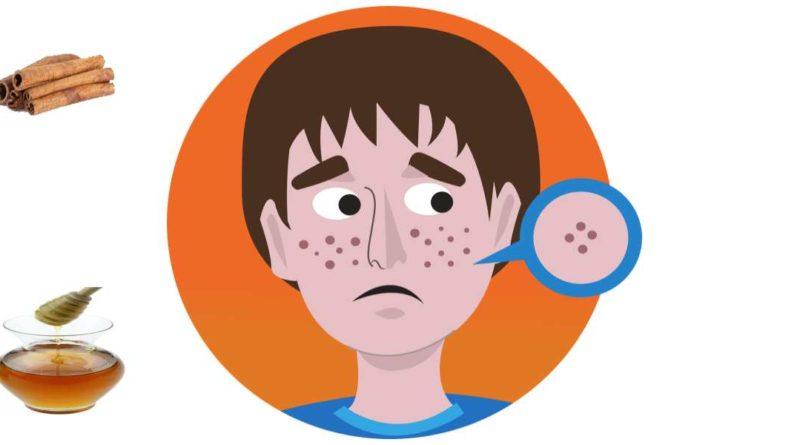 Basic Acne Remedies