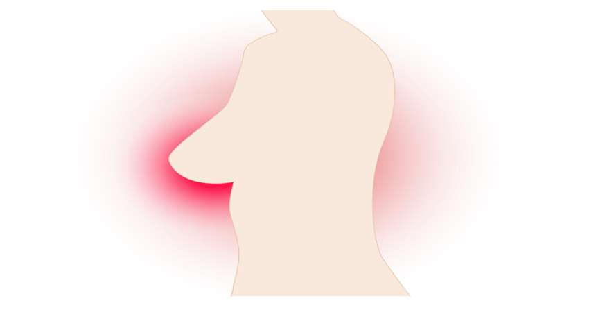 sign of breast cancer